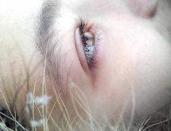 Allergie Auge Allergene