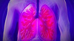 Aspergillose Ursache Allergie Bronchien